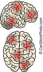 hjärna, feber