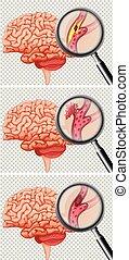 hjärna, slag, sätta, mänsklig