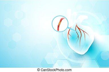 hjärta, begrepp, myocardial, vetenskap, abstrakt, bakgrund., infarction., attack., medicin, pulsåder, geometrisk, blockerat