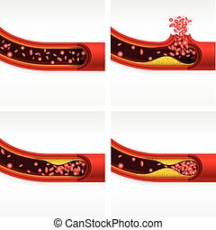 hjärta, hjärn-, avdelning, slag, angrepp, thrombosis, kolesterol, pulsåder