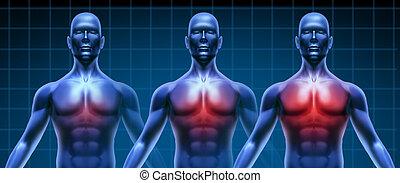hjärta, medicinsk, sjukdom, kartlägga