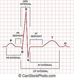 hjärta rytm, normal, mänsklig, bihåla, elektrokardiogram