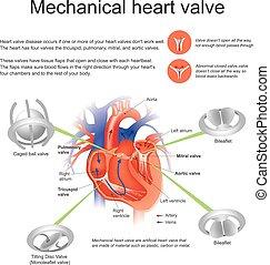 hjärta, ventil, mekanisk