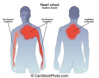 hjärtattack, smärta, lokalisering