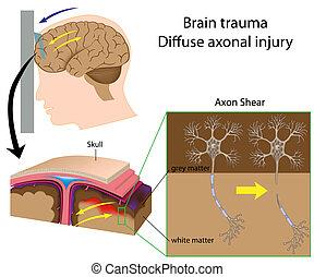 hjerne, trauma, hos, axon, klipningen, eps8