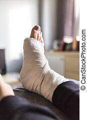 Home treatment of broken leg ater injury