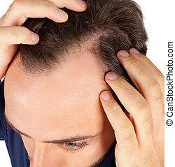 homem, controles, perda cabelo