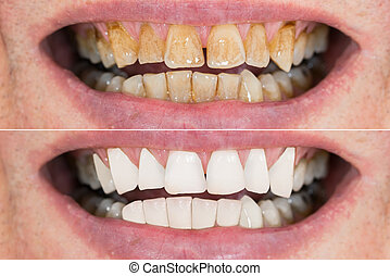homem, dentes, before.and.after, whitening