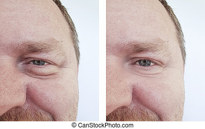 homem, olhos, bloating, pregas, before.and.after, procedimentos