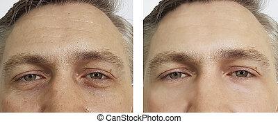 homem, olhos, pregas, before.and.after, procedimentos