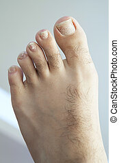 hongo, agrietado, toenails