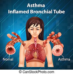 Human anatomy Asthma Inflamed Bronchial Tube diagram ...