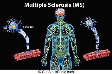 Human Anatomy of Multiple Sclerosis