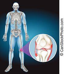 Human body and pain in knee