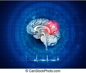 Human brain damage and treatment