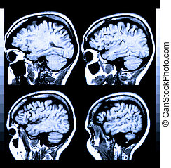Human Brain - Health medical image of an MRI / MRA (Magnetic...