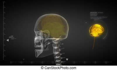 Human brain x-ray scan