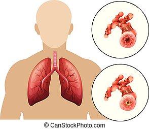 Human Chronic Obstructive Pulmonary Disease