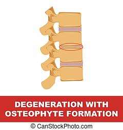 degeneration with osteophyte formation