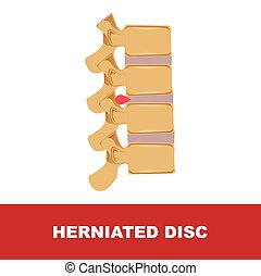 herniated disc vector illustration