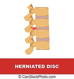human disc degeneration. herniated disc vector illustration