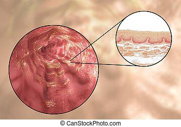 Human esophagous, illustration and light micrograph - Human...
