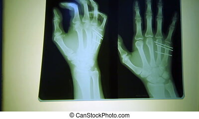 Human finger scan, tech medical X-ray scanning