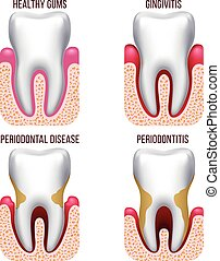 Human gum disease, gums bleeding. Tooth prevention dental, oral care vector infographics