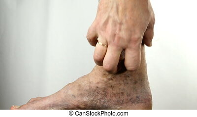 Human hands scratch sore spotted leg of person suffering from blockage of veins, ulcers, dermatitis, eczema or other infectious diseases of dermatology. Close-up.
