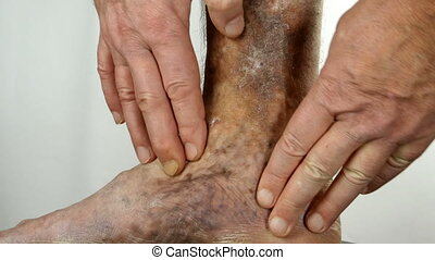 Human hands touch and crumple sore spotty leg of person suffering from blockage of veins, ulcers, dermatitis, eczema or other infectious diseases of dermatology. Close-up. Indoors.