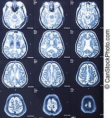 human head X-ray result