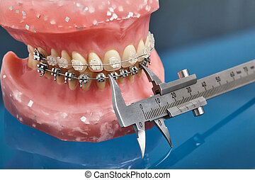 Human jaw or teeth model with metal wired dental braces