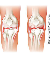 Human knee arthritis - Illustration of the human knee...