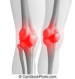 Human knee pain artwork
