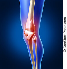 Human knee pain with the anatomy of a skeleton leg and showing the inside inflamation of the painful joint that needs orthopedic surgery and physical therapy as a health care and medicine or medical sports injury concept.