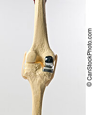 human knee replacement