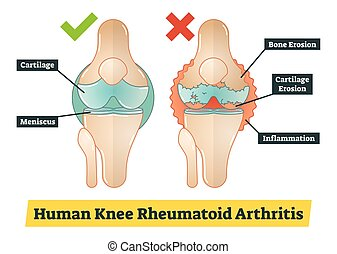 Human Knee Rheumatoid Arthritis, diagram illustration