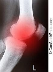 Human knee sidelong