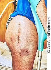Human leg with postoperative scar of joint surgery.  Detail of skin
