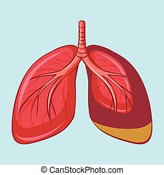 Human Lung with Pleural Mesothelioma illustration