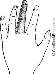 Human Middle Finger, vintage engraving - Human Middle...