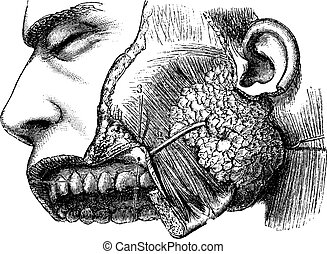 Human Parotid Gland and Sternocleidomastoid Muscle, vintage engraved illustration. Usual Medicine Dictionary by Dr Labarthe - 1885