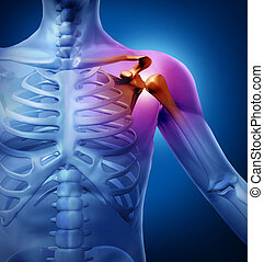Human Shoulder Pain - Human shoulder pain with an anatomy...