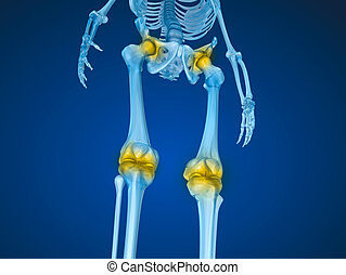 Human skeleton and damajed joints . Medically accurate 3D illustration