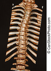 human skeleton ,thoracic and lumbar spine under the X-rays C-T scan on black background