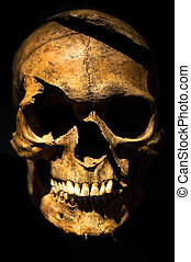 Human skull, boken forehead, cleaved by an axe.