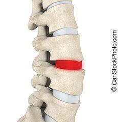 Human Spine Disc Degenerative