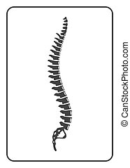 Human spine sign