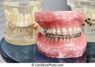 Human teeth orthodontic dental model with implants, dental braces