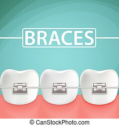 Human teeth with metal braces. Stock Vector cartoon illustration
